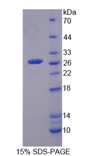 Rat Recombinant Cytoglobin (CYGB)