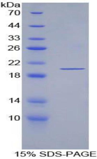 Recombinant Escherichia coli Protein (ECP)