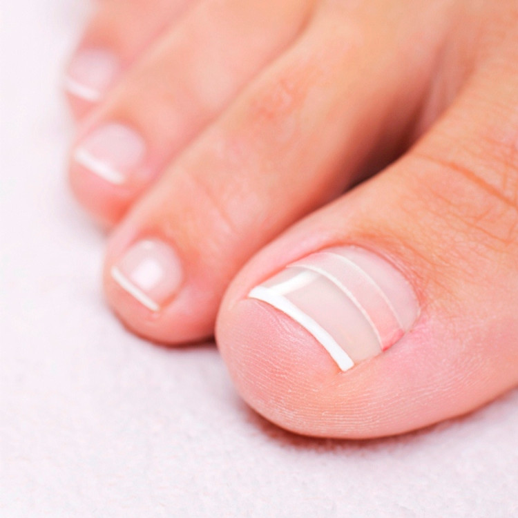 How to Treat an Ingrown Toenail | CurveCorrect