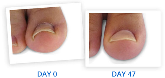 Ingrown Toenail Home Treatment Curvecorrect