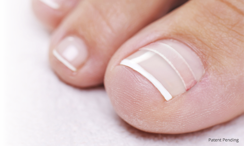 Ingrown Toenail Home Treatment