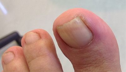 ingrown-toenail-surgery-stage1.jpg