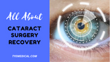 What to Expect During Cataract Surgery Recovery