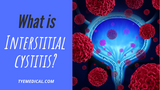A Brief Guide to Interstitial Cystitis