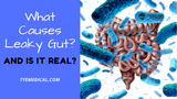 What Causes Leaky Gut (and Is It Real)?