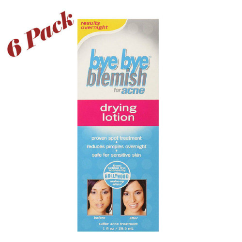 Bye Bye Blemish Drying Lotion for Acne - 1 fl oz ( Pack of 6)