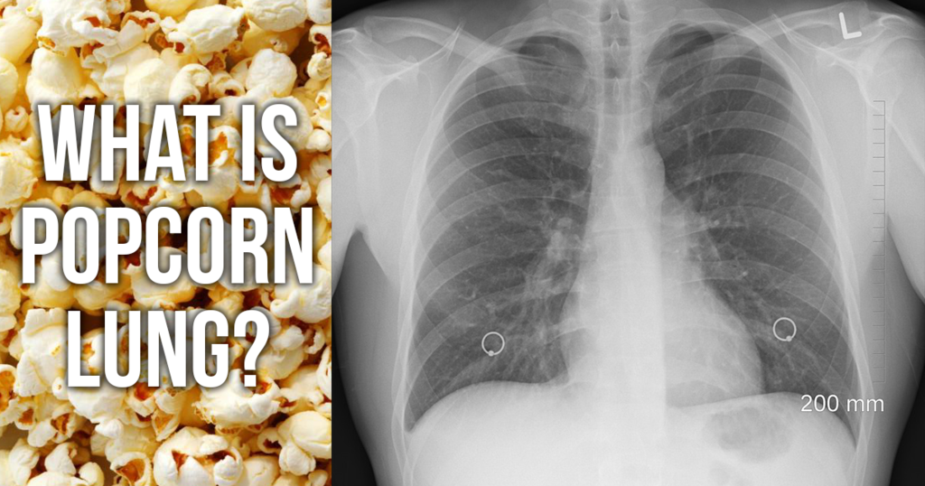 What Is Popcorn Lung - Broke Dick-6106
