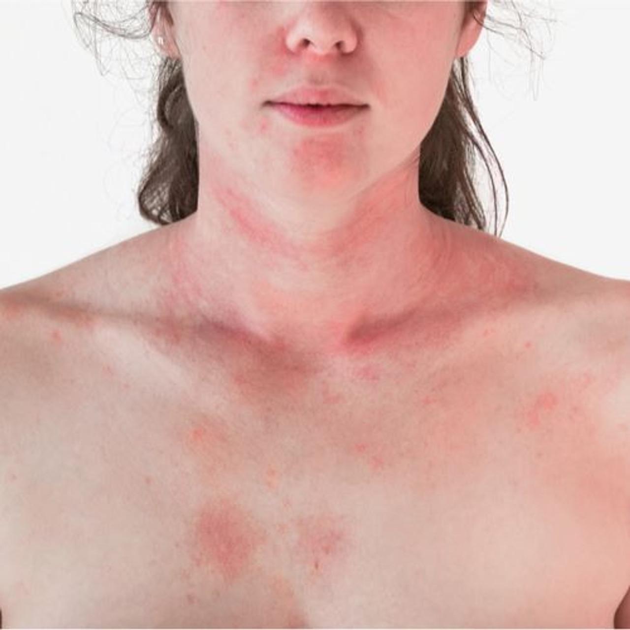 Reactive skin?