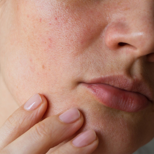To treat a skin condition, you must first repair the skin barrier