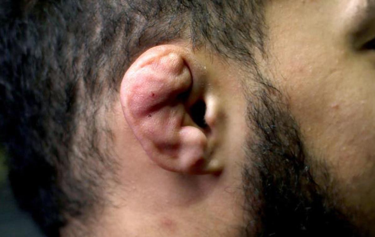 Do Ear Guards Help With Cauliflower Ear?