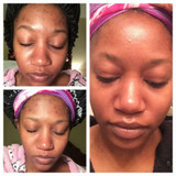 Hairizon Natural Facial Care System (Kit)