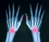 HOW TO SPOT EARLY SIGNS OF ARTHRITIS