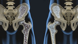 HOW TO TREAT MINOR SYMPTOMS OF OSTEOPOROSIS