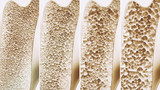 EFFECTICAL®: PROTECTING YOUR BONE HEALTH AGAINST OSTEOPOROSIS