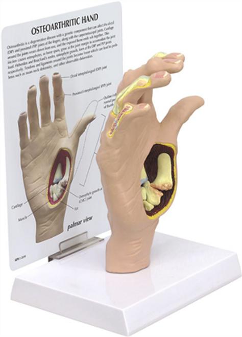 Osteoarthritis Hand