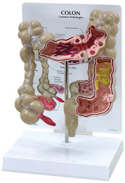 Colon Cancer  model