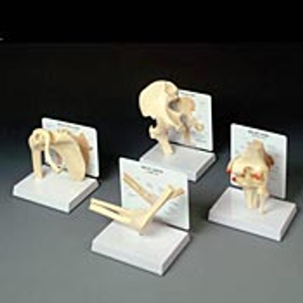 Basic Joint Model Set with Individual Models
