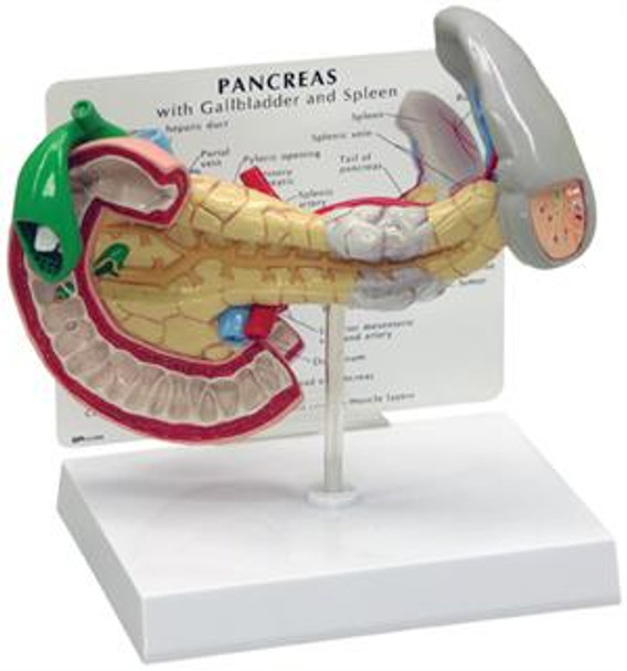 Pancreas/Gallbladder/Spleen cancer model