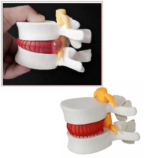 Decompression Spinal Disc Herniation Demonstration Model