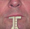 Papillameter