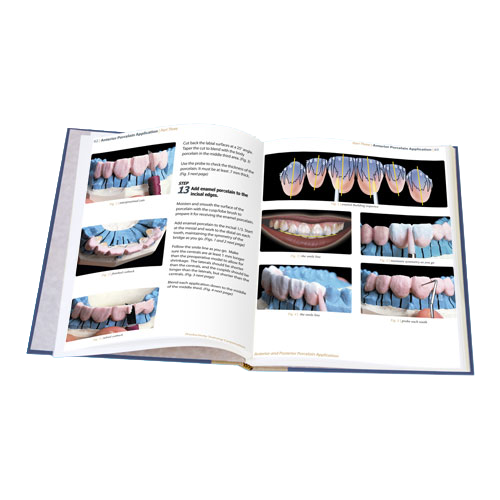 Anterior and Posterior Porcelain Application TechBook