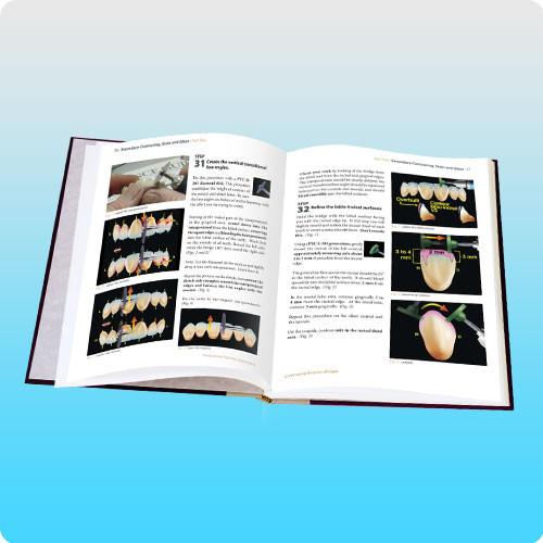 Contouring Anterior Bridges TechBook