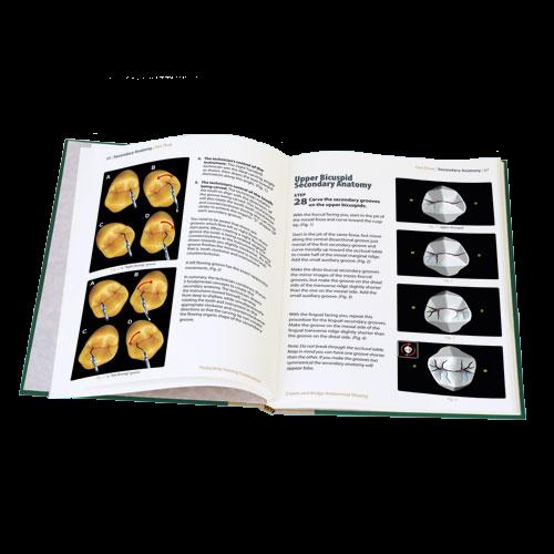 Crown and Bridge Anatomical Waxing TechBook
