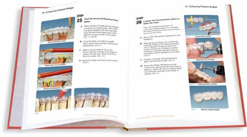 Contouring Posterior Bridges TechBook