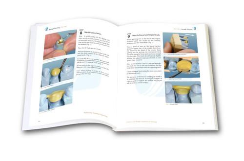 Crown and Bridge Anatomical Waxing TechMaster Module (1 DVD)