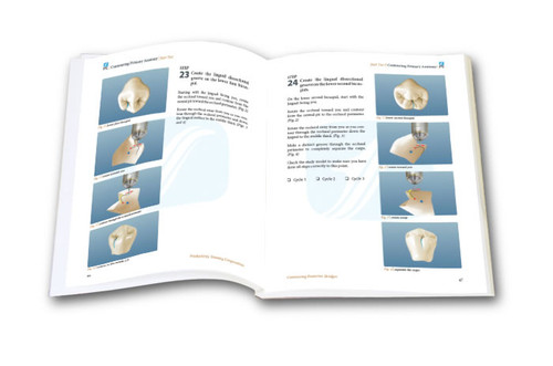 Contouring Posterior Bridges TechMaster Module (1 DVD)