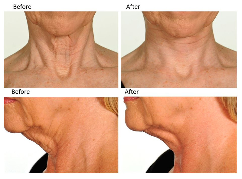 Before and after neck lift results