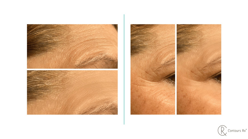 Microcrystal patch used to reduce wrinkles and fine lines provide moisture, keep your skin looking firm & youthful.