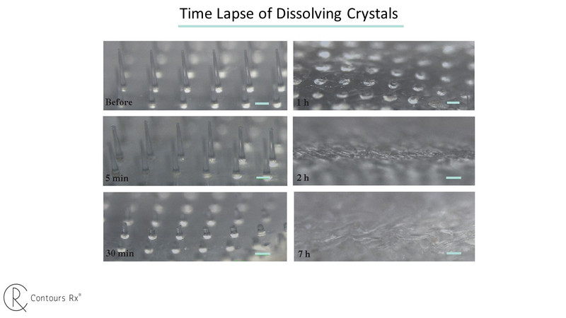 Microcrystal patch - time lapse of dissolving crystals