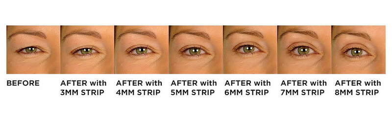 Buy LIDS BY DESIGN instant eyelid correcting tape to lift sagging, drooping heavy hooded eyes. Medical grade, hypoallergenic