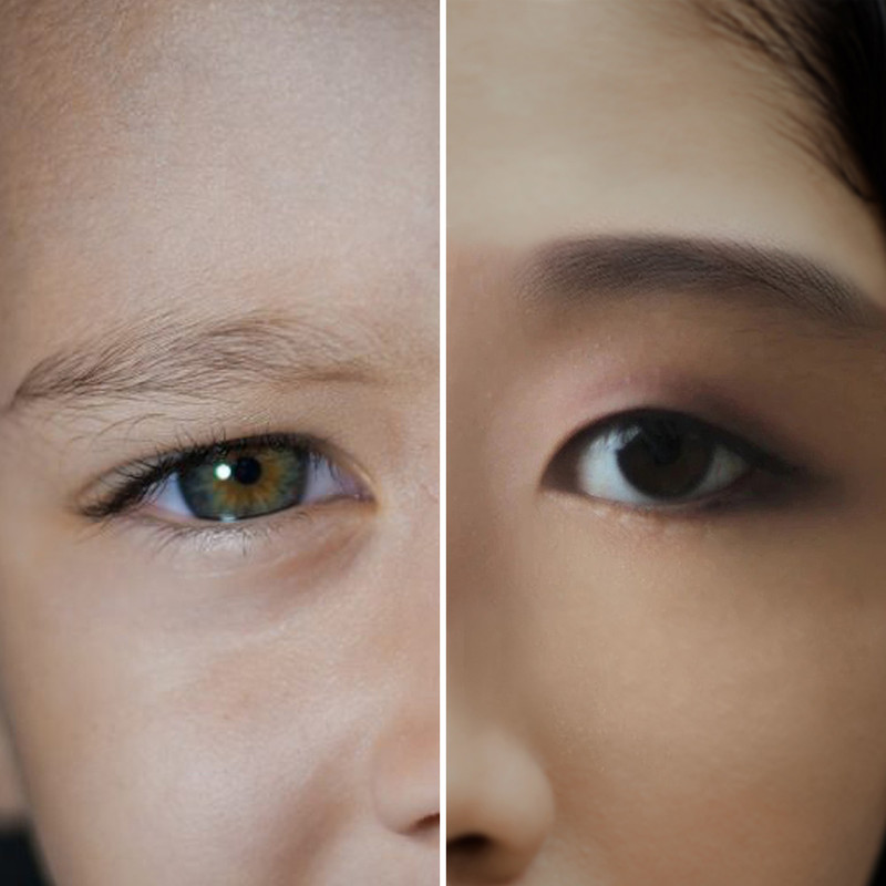 How to Get Rid of Hooded Eyelids