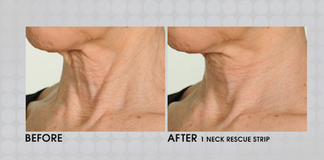 Before & After apply Nesk Rescue strip - Contours Rx®