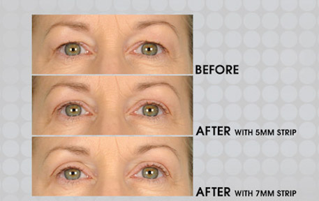Before & After apply 5mm & 7mm Lids By Design eyelid strip - Contours Rx®