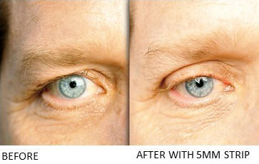 Lids By Design eyelid tape - Contours Rx® - Before & After apply 5mm correcting strip for men