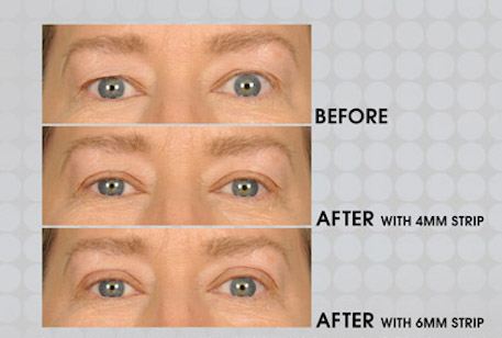 Before & After apply 4mm & 6mm Lids By Design eyelid strip - Contours Rx®