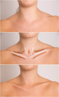 COLORSET All-In-One Pencil  - Contours Rx® - Before & After applying near neck