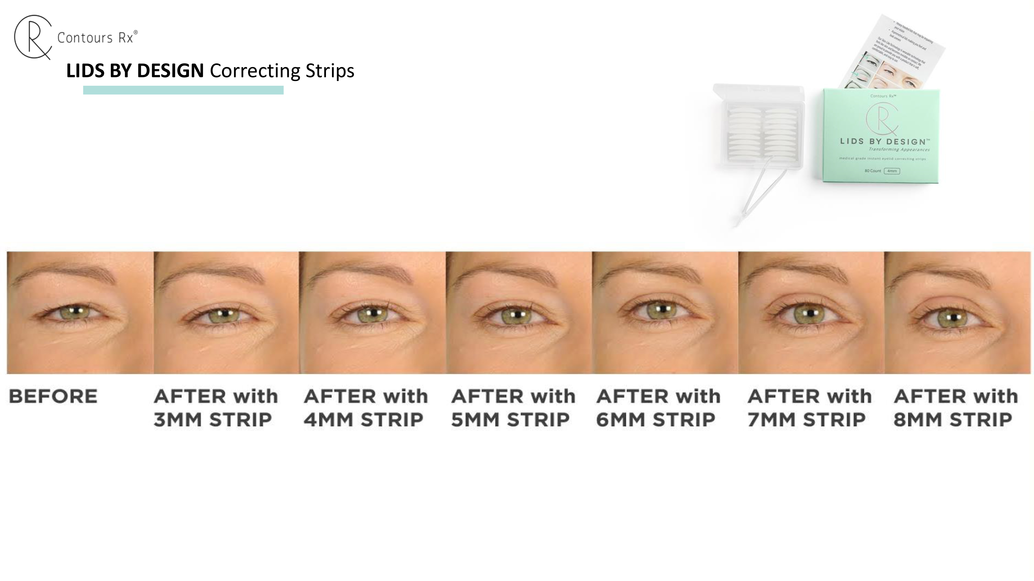 Before & after Lids By Design Correcting Strips - Contours Rx®