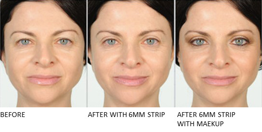 Lids By Design eyelid tape - Contours Rx® - Before & After apply 6mm correcting strip for woman with makeup