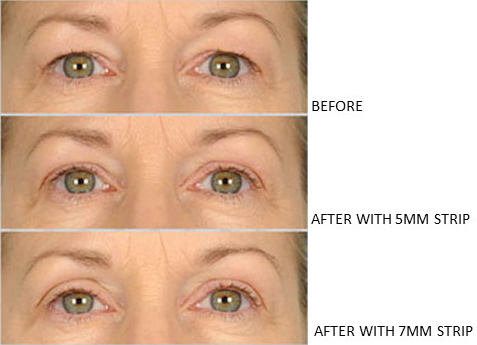 Lids By Design eyelid tape - Contours Rx® - Before & After apply 5mm & 7mm correcting strip for woman