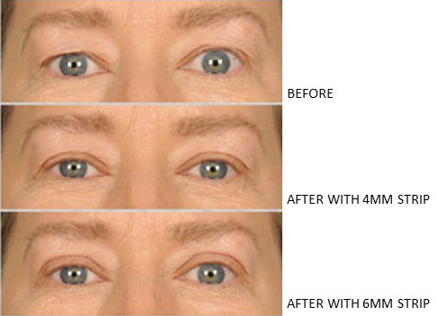 Lids By Design eyelid tape - Contours Rx® - Before & After apply 4mm & 6mm correcting strip for woman