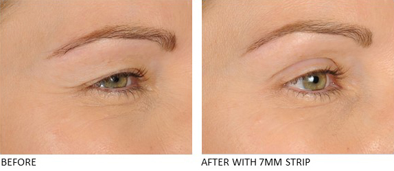 Lids By Design eyelid tape - Contours Rx® - Before & After apply 7mm correcting strip