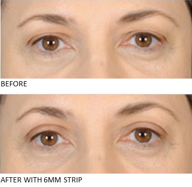 Lids By Design eyelid tape - Contours Rx® - close up view of Before & After apply 5mm correcting strip
