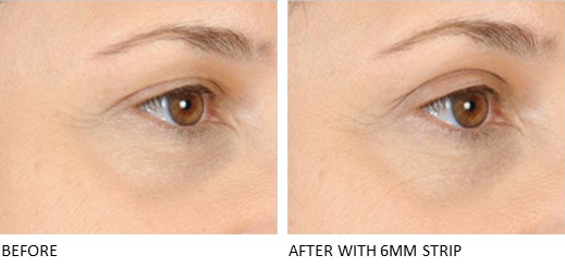 Lids By Design eyelid tape - Contours Rx® - Before & After apply 6mm correcting strip
