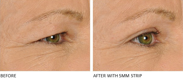 Lids By Design eyelid tape - Contours Rx® - Before & After apply 5mm correcting strip for woman