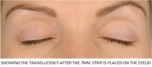 Lids By Design eyelid tape - Contours Rx® - Showing the translucency after the 7mm strip is placed on the eyelid