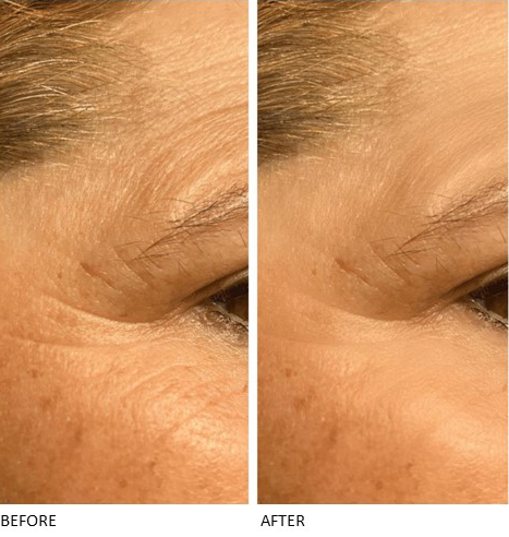 Micro Crystal Patches - Contours Rx® - Before & After apply near eyes